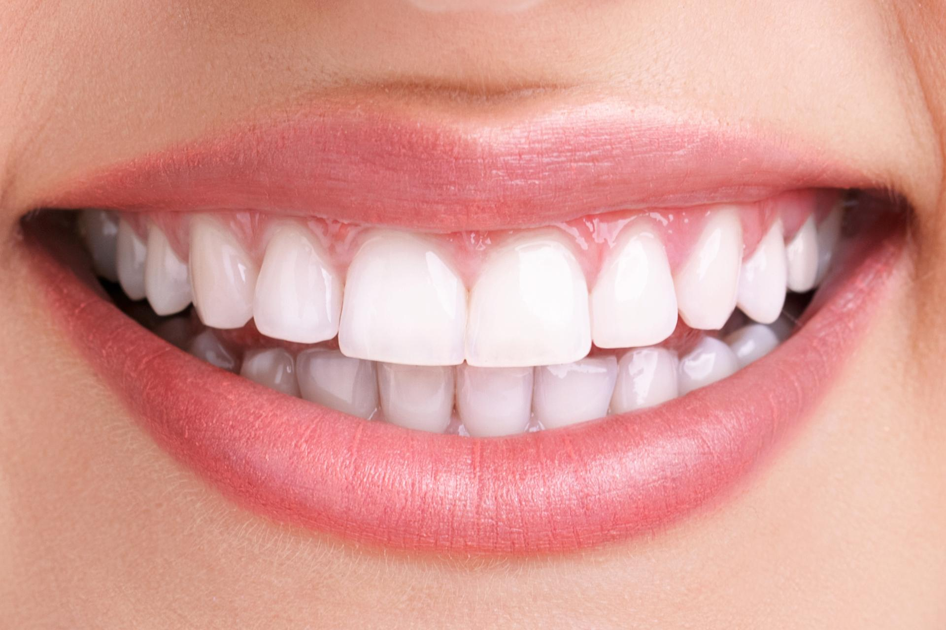 After-Boutique Teeth Whitening
