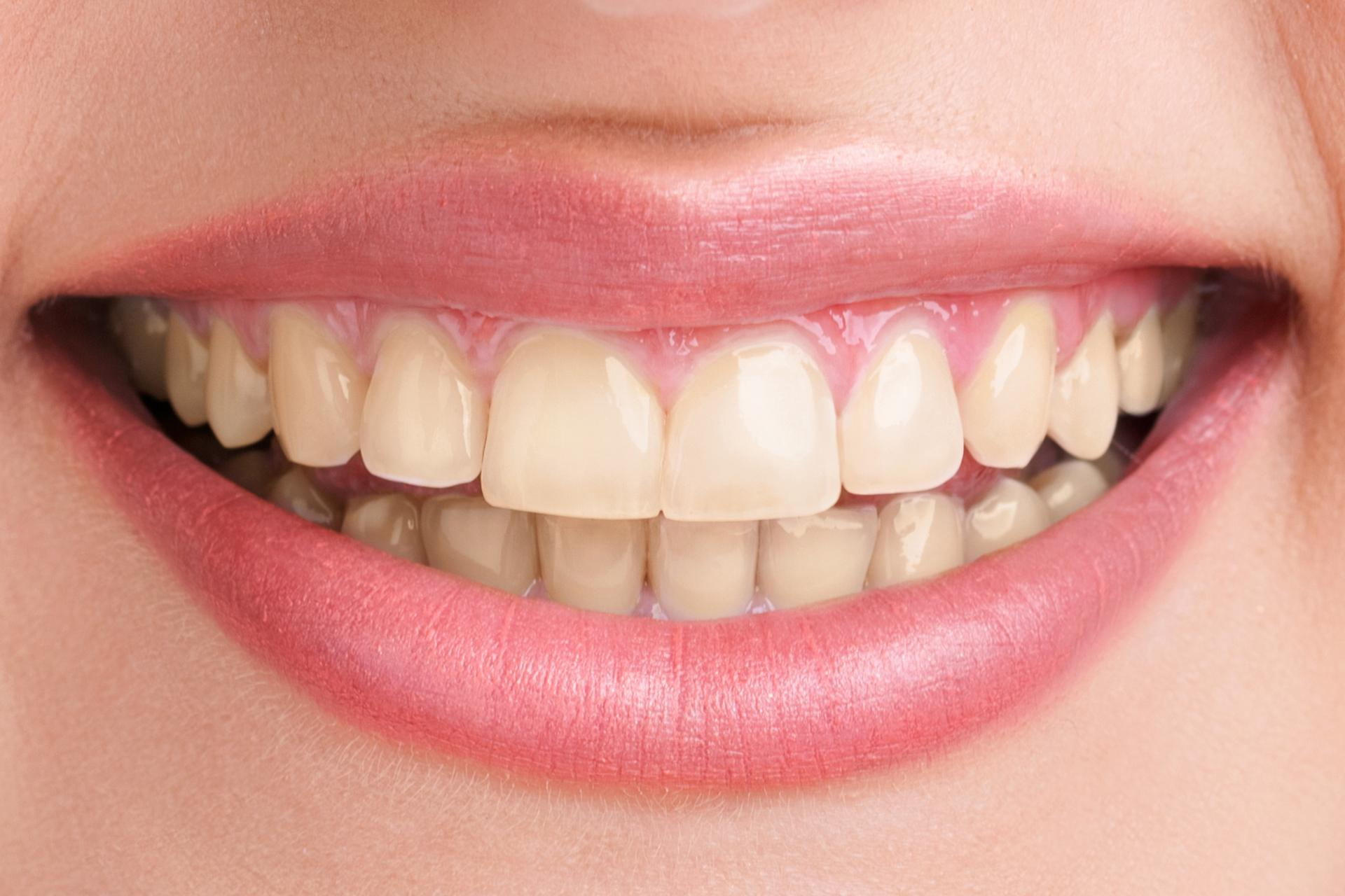 Before-Boutique Teeth Whitening